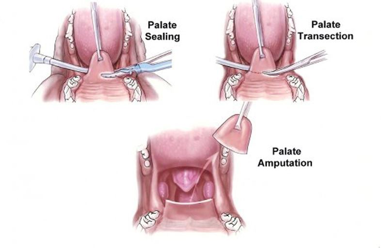 Image result for stenotic nares surgery